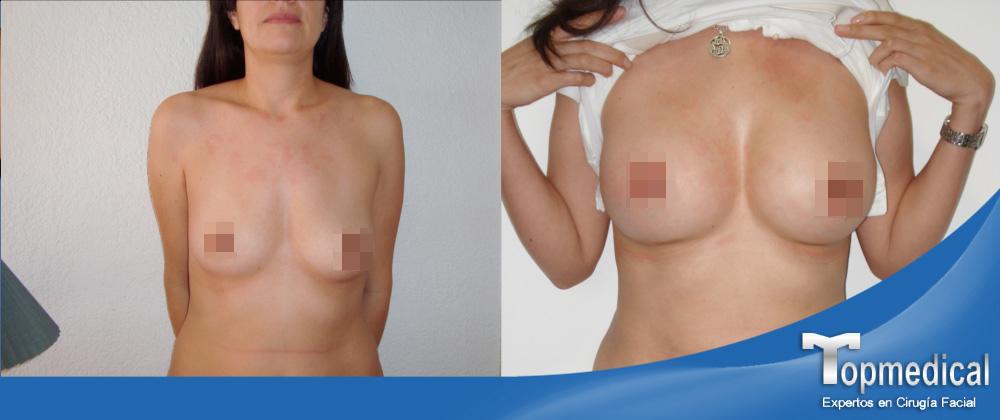 Doctores de implantes mamarios en Kansas